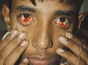 foto Demam Denggi - Tanda-Tanda dan Cara Mencegah